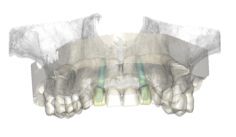 1220083 ISfAA indication Multiple single tooth restorations web